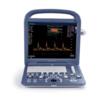 Продам портативный узи аппарат sono scape s2 ( в комплектации с 3-мя датчиками)